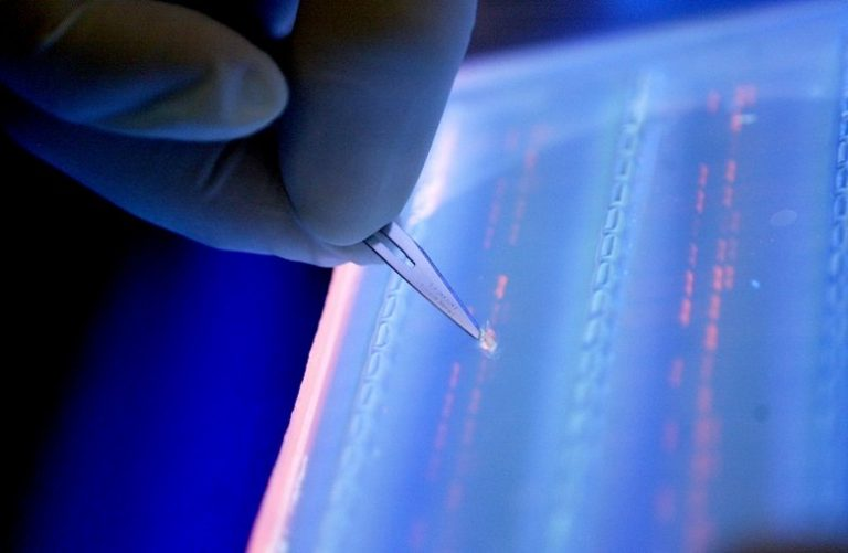 Σύστημα τεχνητής νοημοσύνης κάνει διάγνωση λευχαιμίας – News.gr